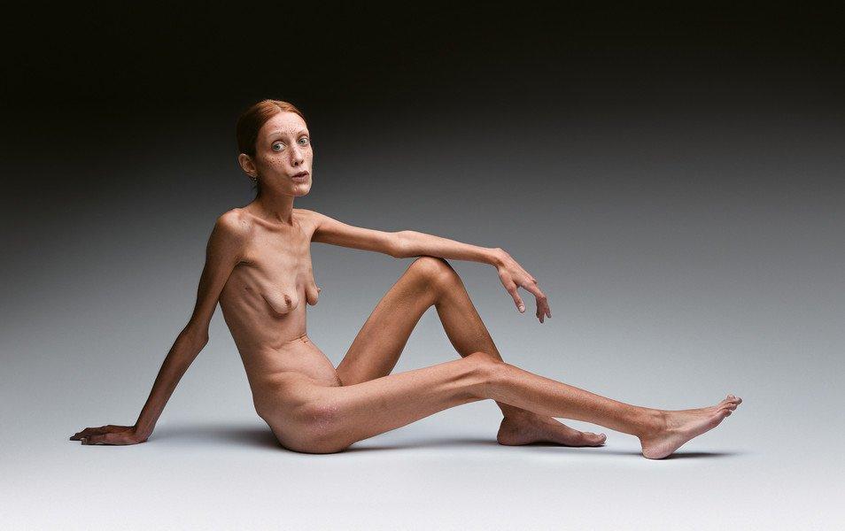 oliviero_toscani_no_anorexia
